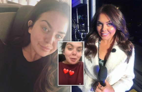 Scarlett Moffatt reveals she's NEVER had cosmetic surgery after claims that her alleged 'secret nose job had gone too far'
